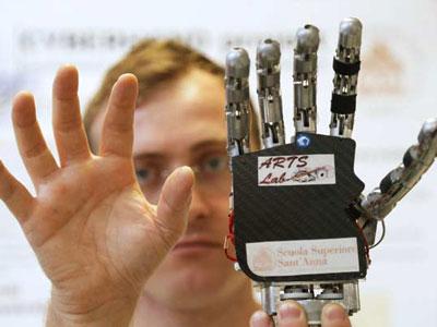Prva bionička ruka - Foto: AP