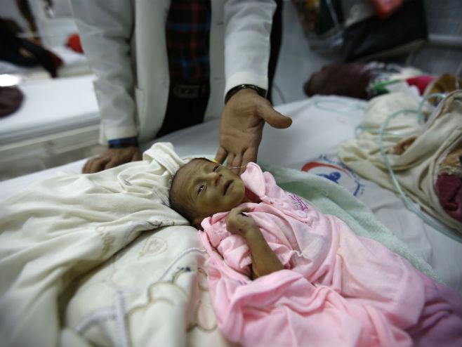 U Јemenu od gladi umiru djeca (Foto: Business Insider) -