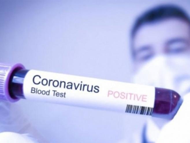 Virus korona (ilustracija) -