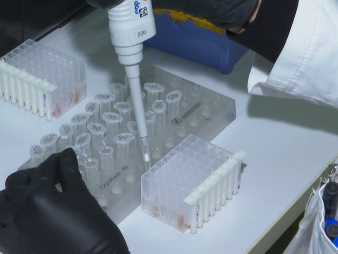 Virus korona - Foto: RTRS
